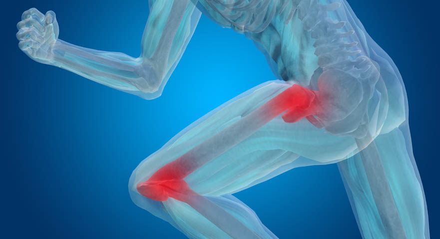 hip-knee-pain
